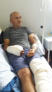 Após sobreviver a descarga elétrica, bonjardinense precisa de ajuda para concluir tratamento